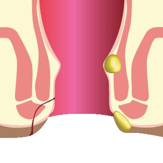 Abcès et fistule anale au niveau du rectum - Chirurgie Hémorroïdes