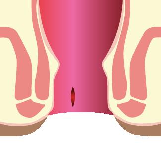 Fissure anale au niveau du rectum - Chirurgie Hémorroïdes