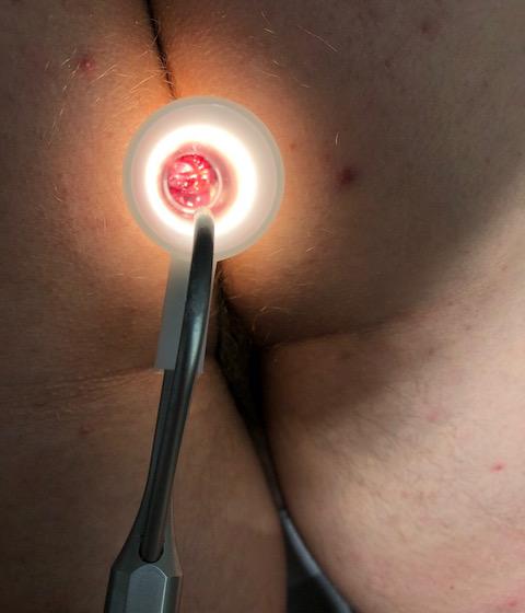 Hémorroïde de grade 3 - Chirurgie Hémorroïdes