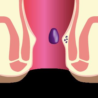 Hémorroïdes internes au niveau du rectum - Chirurgie Hémorroïdes